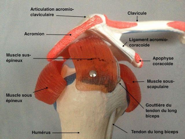 rupture grand pectoral