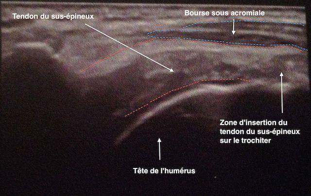 La tendinite de la coiffe des rotateurs ou tendinite de l'épaule ...
