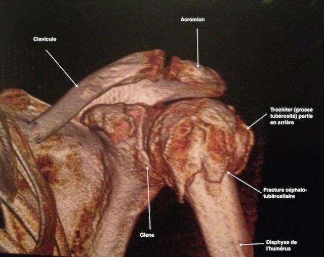 différentes fractures osseuses