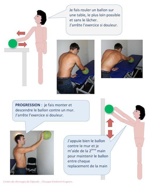 Préférence La rééducation de l'épaule après opération de la coiffe des  MD83